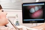 Nowe trendy w stomatologii estetycznej – dłuższe i młodsze zęby